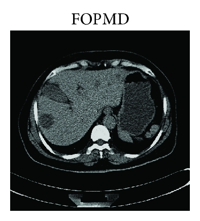 (g) LDCT image in Figure 1(d) processed by FOPMD in [9] with   ,   , and    and iteration number is 3