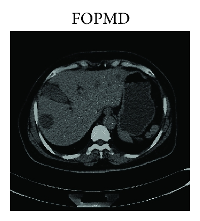 (h) LDCT image in Figure 1(d) processed by FOPMD in [9] with   ,   , and    and iteration number is 8