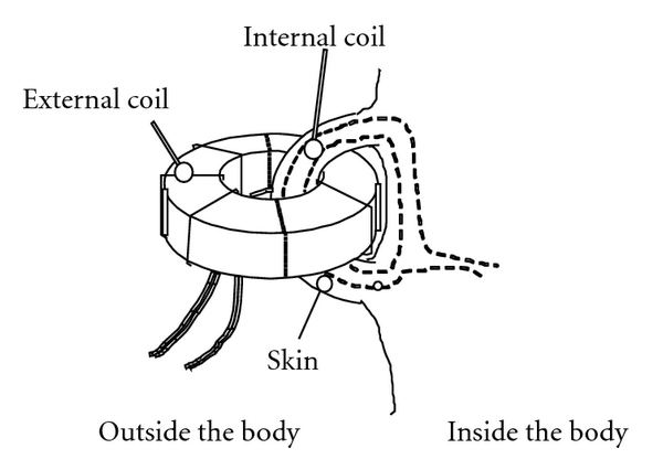 (b) Illustration of internal coil embedding and the transformer wearing