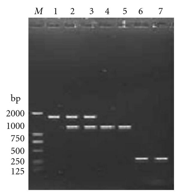 (b) PCR with primers asdP5/asdP6 identified Wt, SP   (Cm) andSP   mutant, Lane 1: wt;  Lanes 2, 3: First crossover of conjugants;  Lanes 4, 5: Second crossover of conjugants (theSP   (Cm) mutant); Lanes 6, 7: theSP   mutant.
