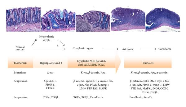 Morphological And Molecular Alterations In 1 2 Dimethylhydrazine And Azoxymethane Induced Colon Carcinogenesis In Rats