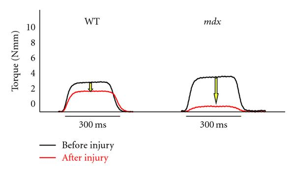 Diffusion Tensor MRI to Assess Damage in Healthy and ...