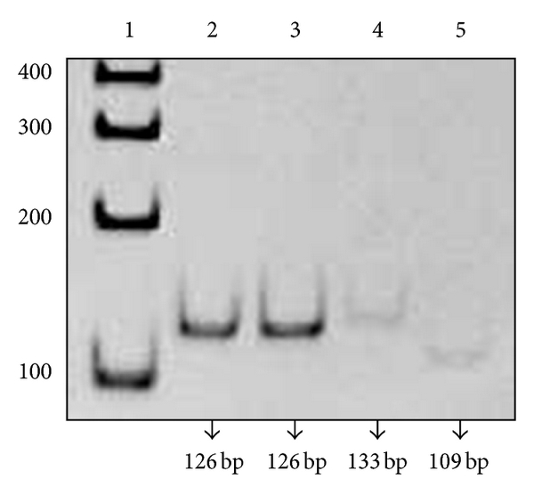 (b) Enzymatic digestion of FXN-1 and FXN-2 PCR products