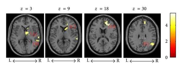 694075.fig.004a