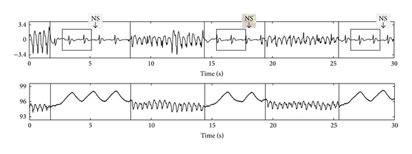 (b) Rhythm analysis during the ventilation pauses for a patient in PEA