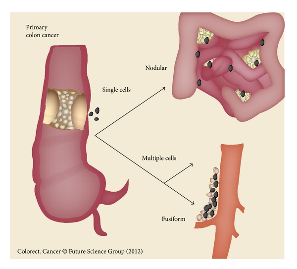 Colorectal Cancer Prevention And Management Of Metastatic Disease
