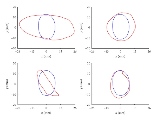 (b) Modelling MAB shape and its variations of training set: the fixed blue-solid contours are the mean adventitia shapes, while the red-solid contours are deformed adventitia shapes of the first four eigenvectors