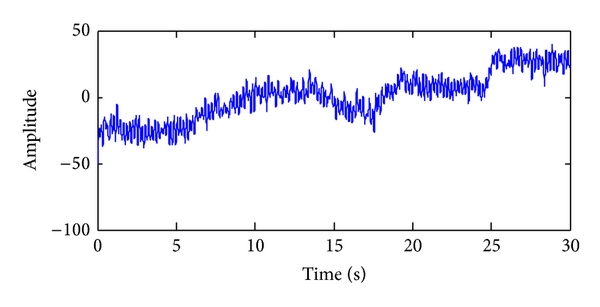 (a) Typical epoch of recorded EEG