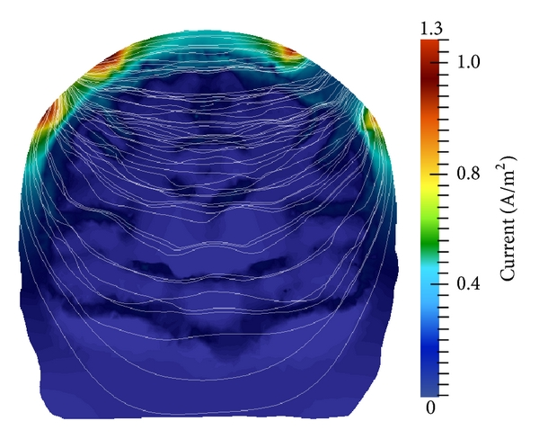 (b) Electric current density and field stream lines from coronal cross-section taken through the anode and cathode electrode centers; viewing perspective is from the posterior