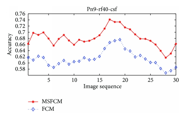 (c) The accuracy comparison of FCM and MSFCM method on cerebrospinal fluid segmentation