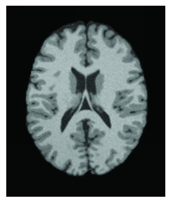 (a) The original MRI image