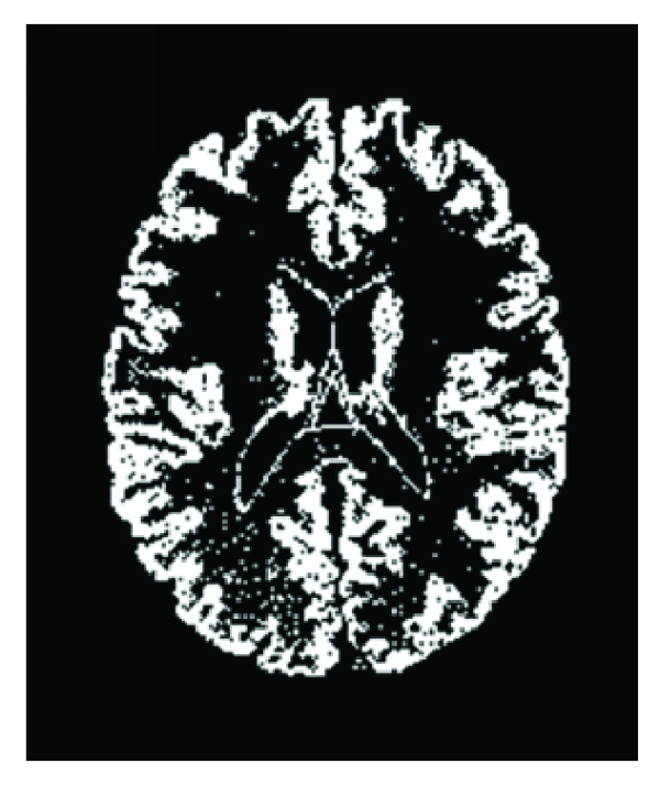 (c) The gray matter segmentation results of FCM