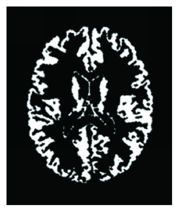 (f) The gray matter segmentation results of MSFCM