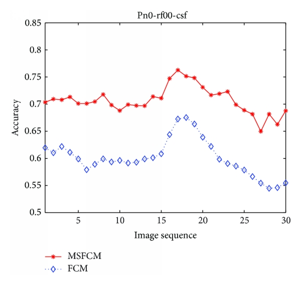 (c) The accuracy comparison of FCM and MSFCM method in cerebrospinal fluid segmentation