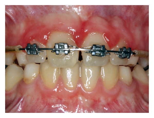 (a) Fixed orthodontic period