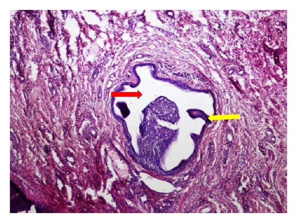 Intraductal papilloma of salivary glands, Ductal papilloma of salivary gland origin