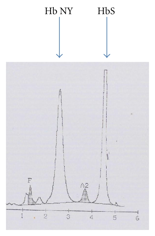 (a) This electropherogram was obtained with the Beta Rad beta short program; both Hb New York and HbS are indicated. Using this high performance liquid chromatography program, Hb New York behaves like HbA