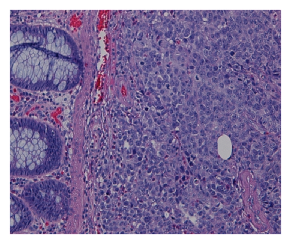 A Rare Case Of Metastatic Malignant Melanoma To The Colon From An Unknown Primary