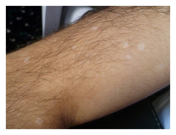 Vitiligo In A Patient Treated With Interferon Alpha 2a For Behcet S Disease