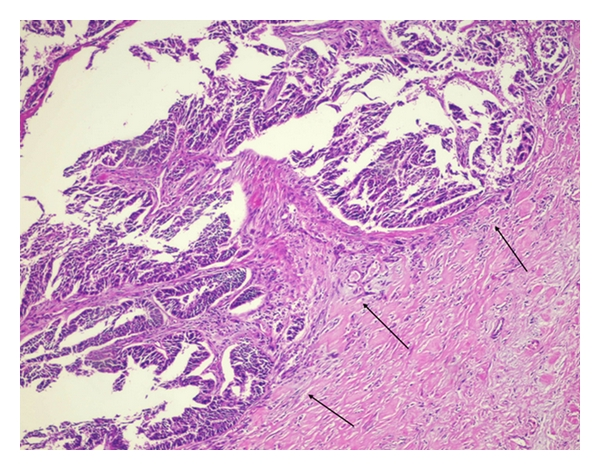 Pancreatic Metastasis Of High Grade Papillary Serous Ovarian Carcinoma Mimicking Primary Pancreas Cancer A Case Report