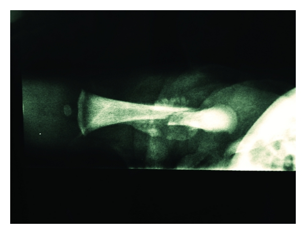 Cesarean Section and Right Femur Fracture: A Rare but ...
