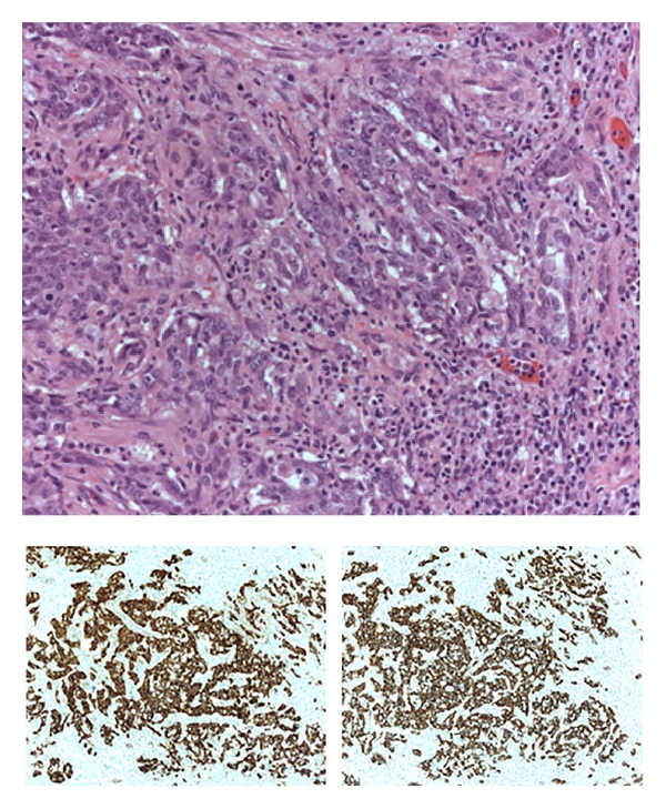 Renal Medullary Carcinoma Case Report Of An Aggressive Malignancy With Near Complete Response To Dose Dense Methotrexate Vinblastine Doxorubicin And Cisplatin Chemotherapy