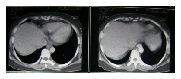 (b) No evidence of pleural effusion or ascites