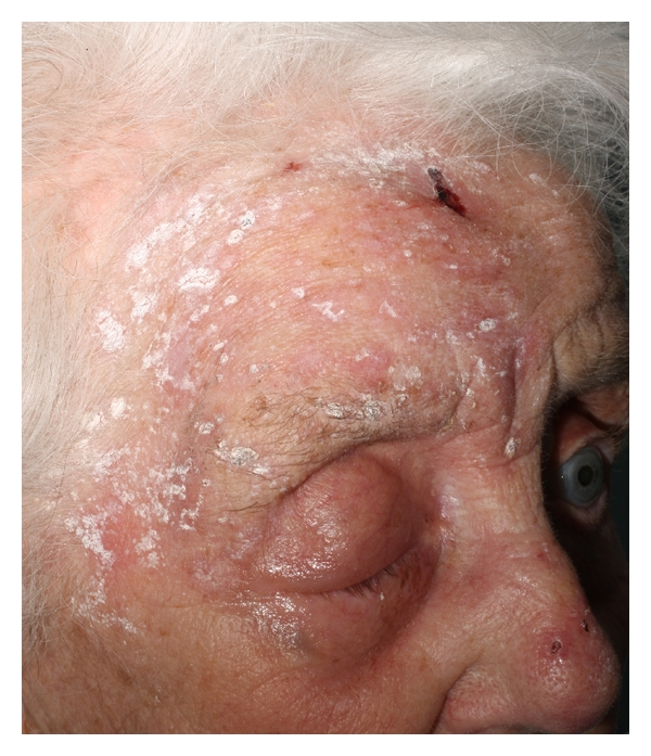 An Acute Case Of Herpes Zoster Ophthalmicus With Ophthalmoplegia