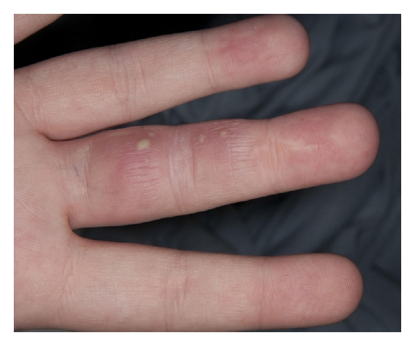 A Case Report Of Herpetic Whitlow With Positive Kanavel S Cardinal Signs A Diagnostic And Treatment Difficulty