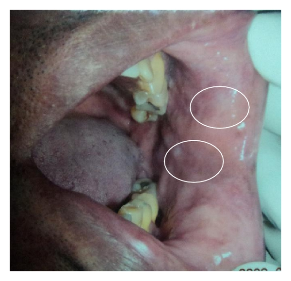 (a) White lesions on left side buccal mucosa