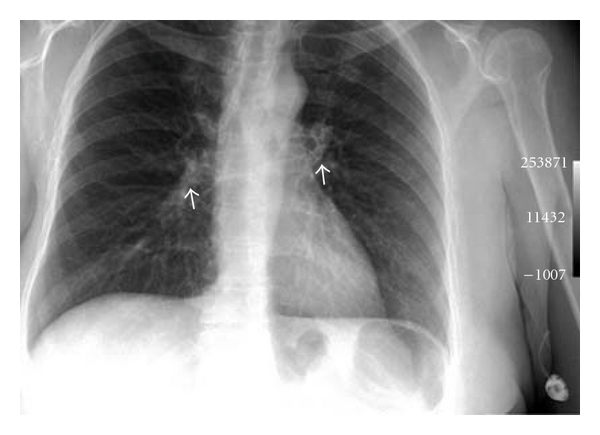 (a) PA Chest X-ray.
