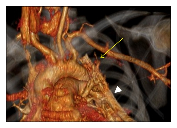 (b)  3D reconstruction of the images from (a). Yellow arrow points to the area of active contrast extravasation. White arrowhead points to thoracostomy tube