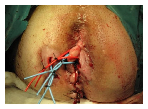 (c) After surgical biopsy