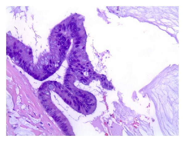 (d) Histological biopsy result: mucinous adenocarcinoma