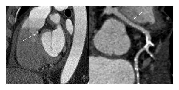 (b) Demonstration of the course of the LMCA below the pulmonary artery and through the septum by sagittal maximum intensity projection (left) and curved multiplanar reconstruction (right). Left main Coronary artery (white arrow)