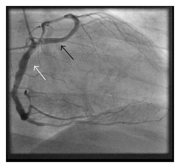 (c) Right anterior oblique showing the LMCA (black arrow) arising with the right coronary artery (white arrow) from a common ostium in the right sinus of Valsalva