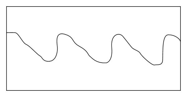 (b) Arterial pulse wave form in a woman with arterial hypertension