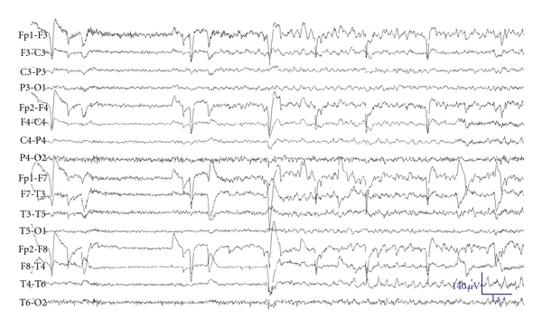 (b) Ictal scalp EEG in the same patient showing possible bitemporal onset of seizure