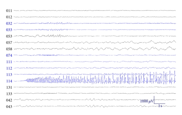 (e) Ictal subdural EEG showing seizure onsetting electrode 114 (left posterior temporal region, coinciding with the lesion)