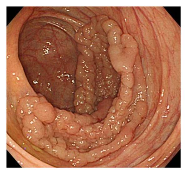 Application Of Autofluorescence Endoscopy For Colorectal Cancer Screening Rationale And An Update