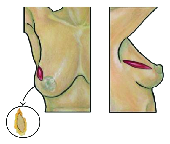(c) Radial ellipse resection cavity and specimen