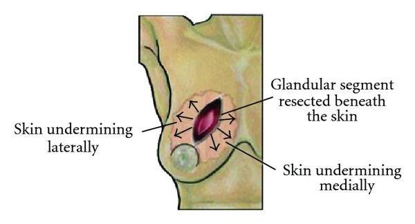 (c) Resection cavity below skin flaps