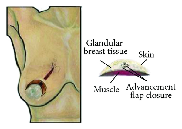 (d) Circumareolar incision with advancement flap