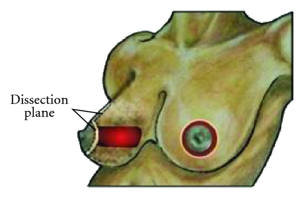 (e) Resection cavity