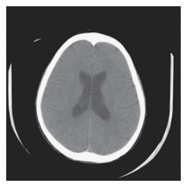 248393.fig.004a