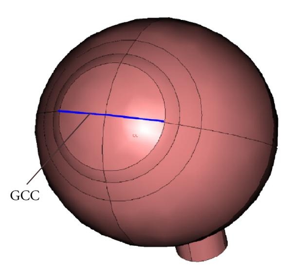 (d) Human eye model used by Ng and Ooi [3]