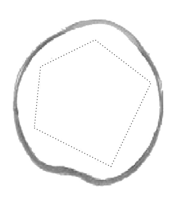 (a) Eyeball surface and the original polygon of level set evolution