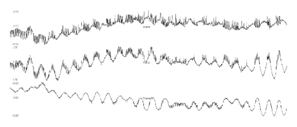 (b) Noise with apparent periods