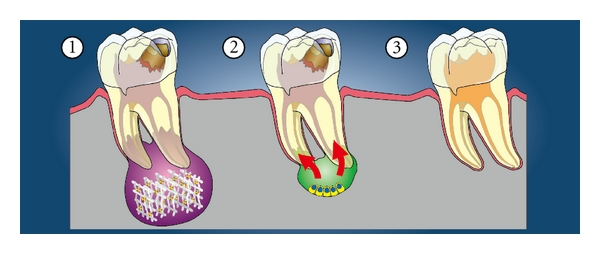 (c) Local regeneration of dentin pulp from apical pulp or periapical tissues