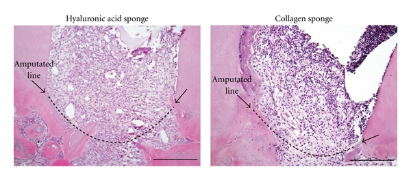 (b) Pulp proliferation and inflammatory reaction in sponges at defects